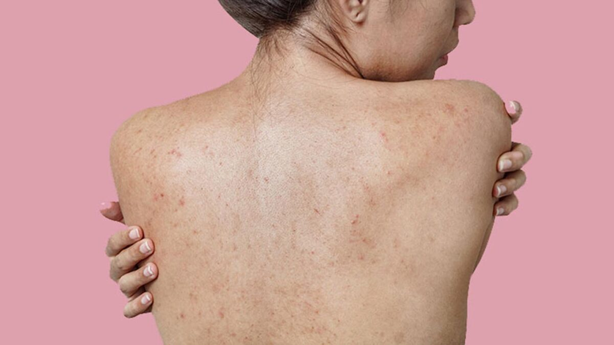 Best Home Remedies to Get Rid of Back Acne Scars